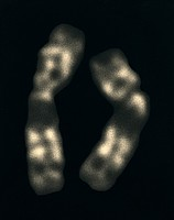 Genetic Self-Portrait: Chromosomes 11 1997
