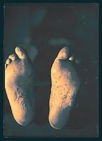 Feet 1908 / 2008