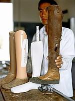 a history of prothetics